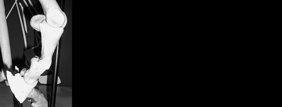 Fesselgelenk Hinterbein & Hufbein